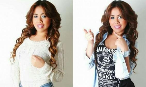Actriz Yina Calderón es operada de urgencias en Bogotá